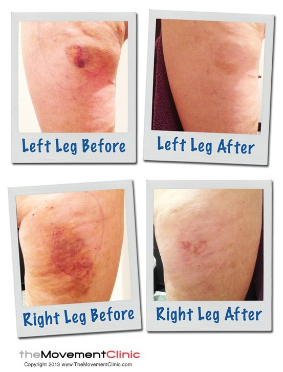 Manual lymphatic drainage after facelift