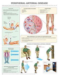 Peripheral vascular disease guidelines australia
